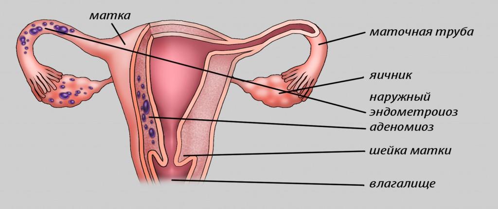 симптомы аденомиоза матки