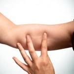 Противозачаточные импланты