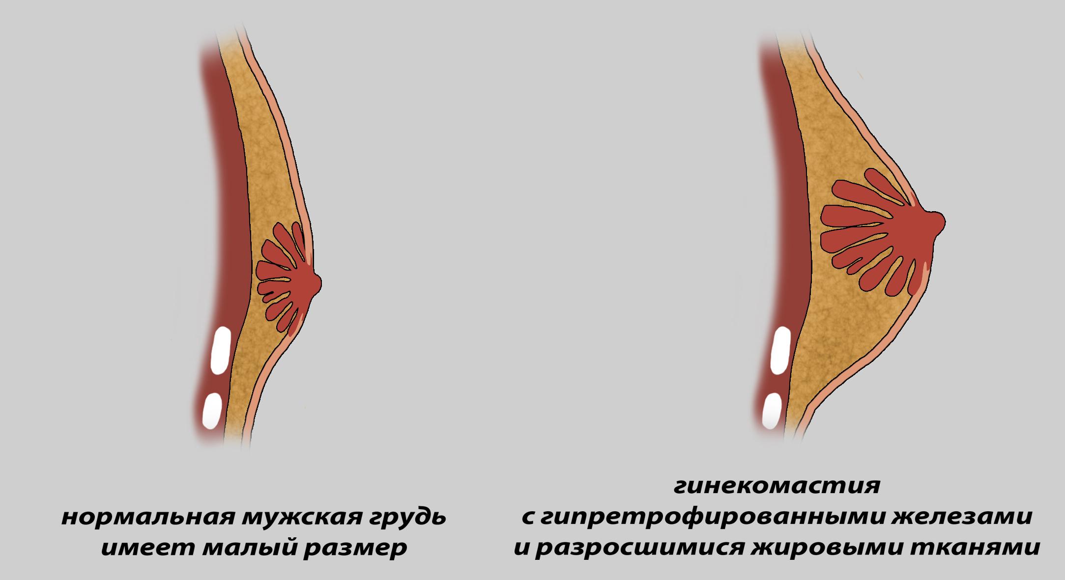 гинекомастия 2