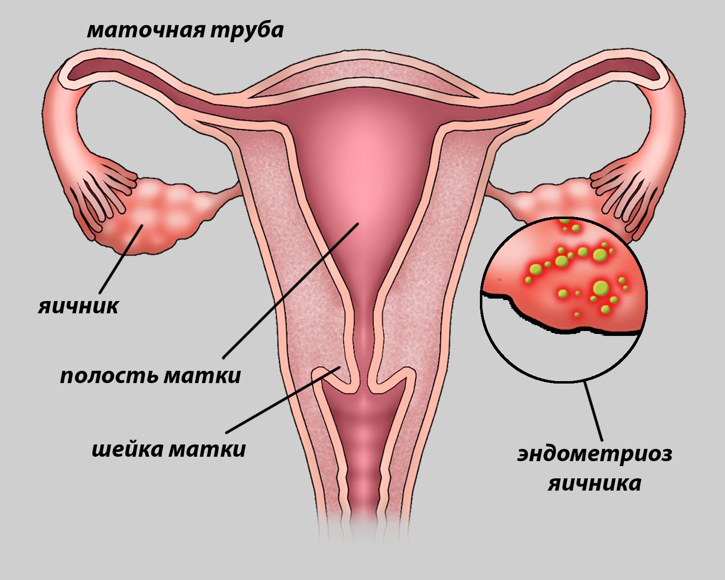 Эндометриоз и отсутствие секса