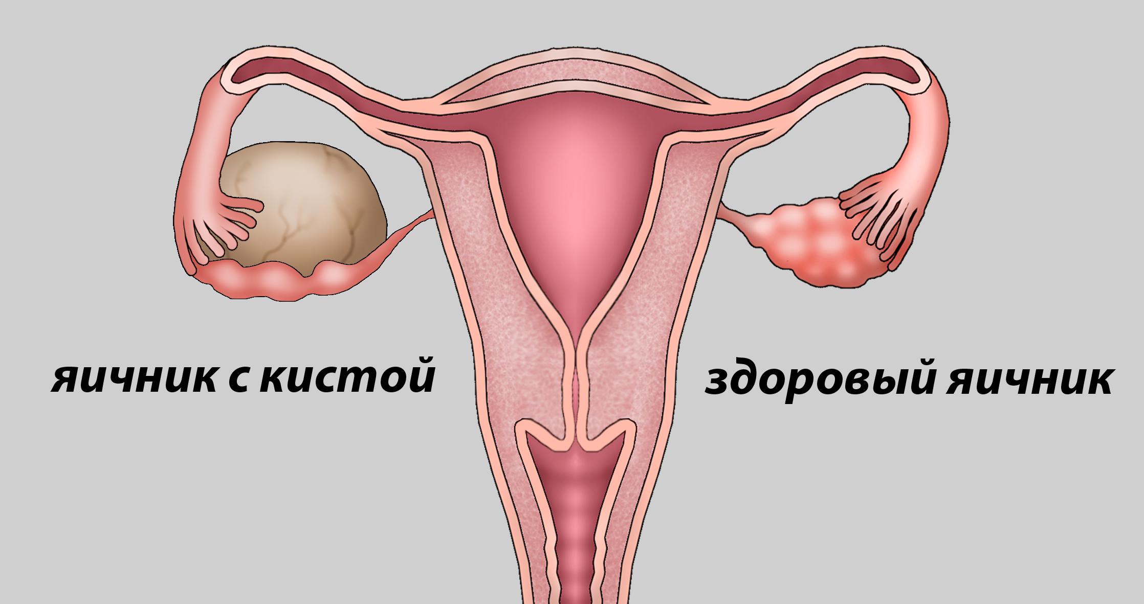 киста яичников 2