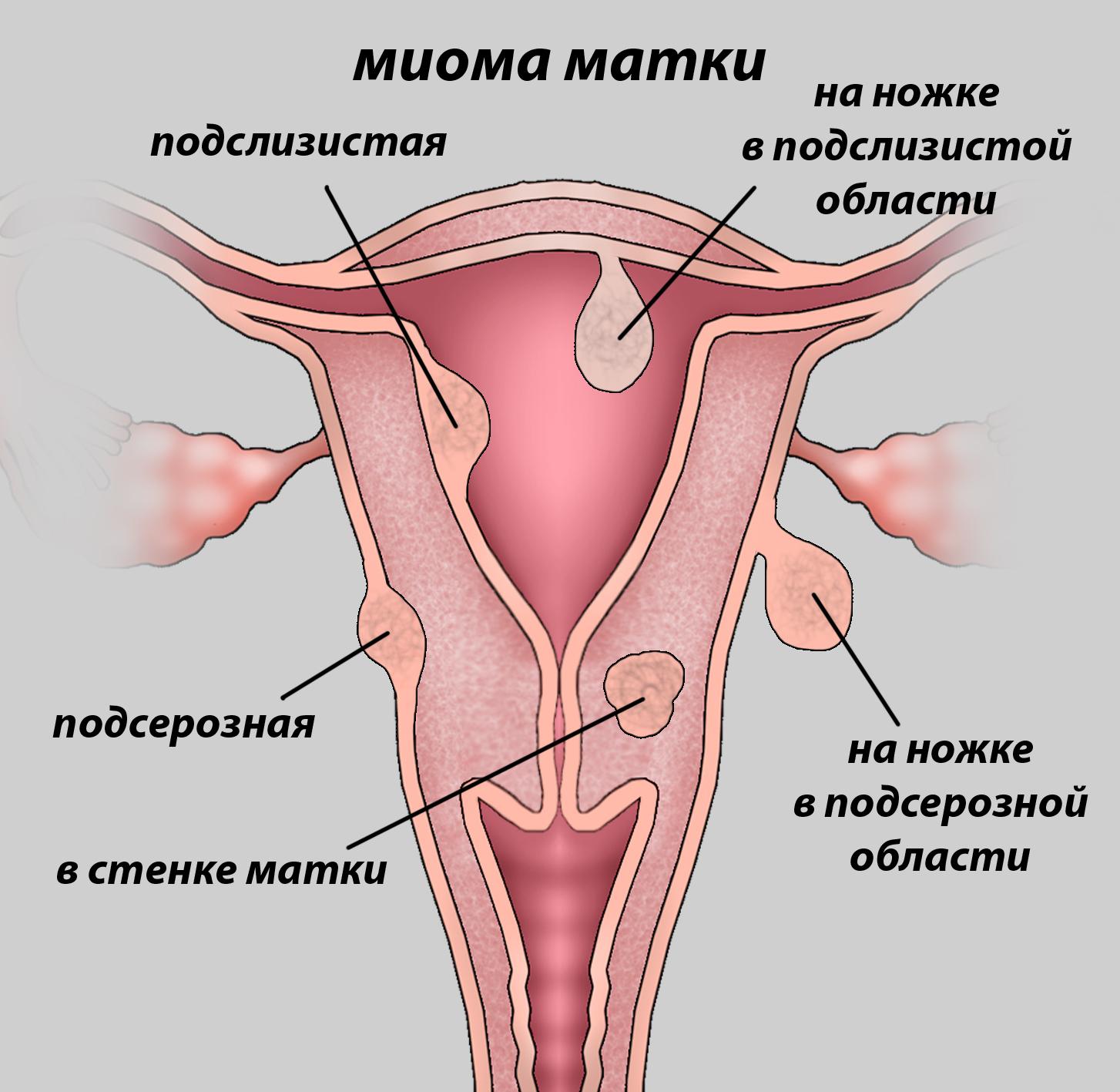 миома матки 2