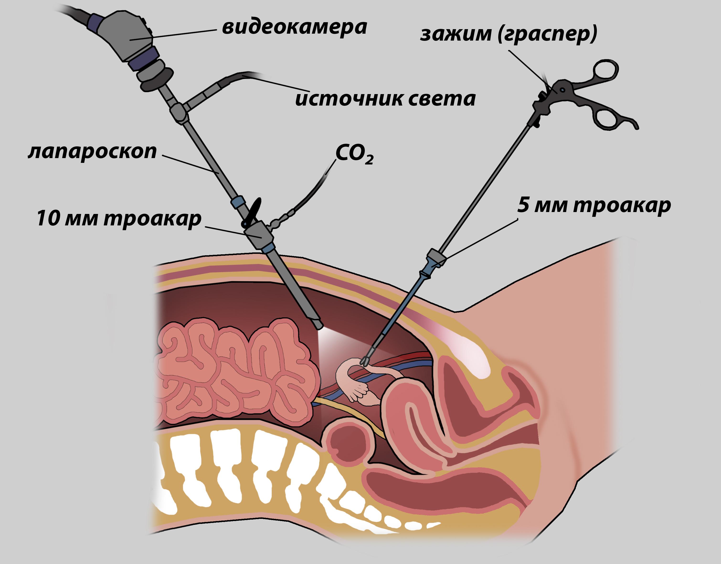 последствия лапароскопии 2