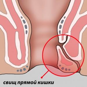 свищ-прямой-кишки 2