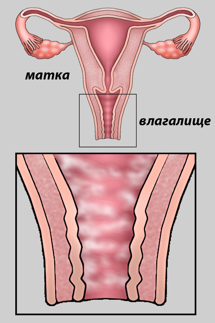 вагинальный дисбактериоз 2