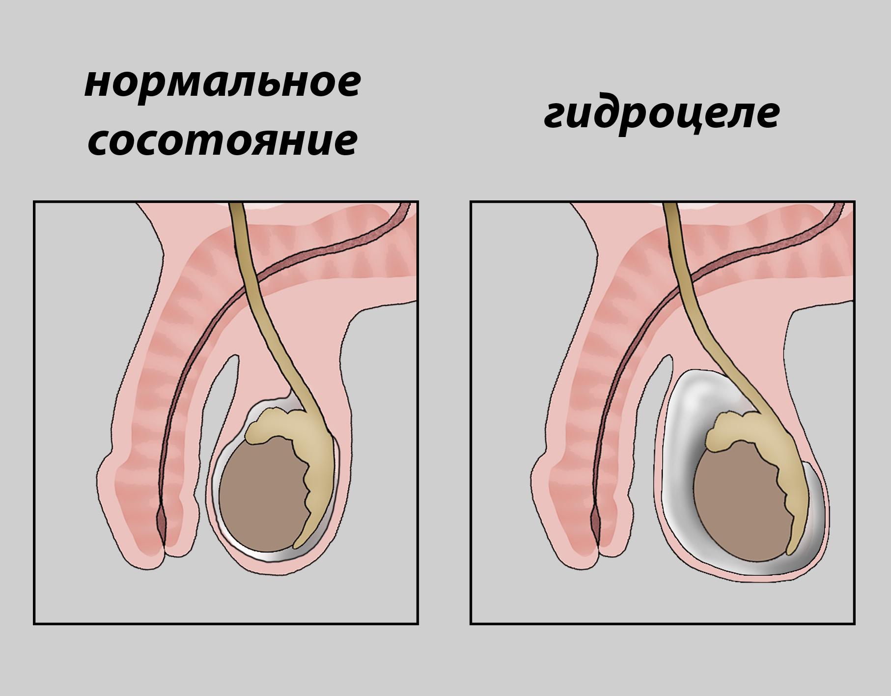 водянка яичка 2