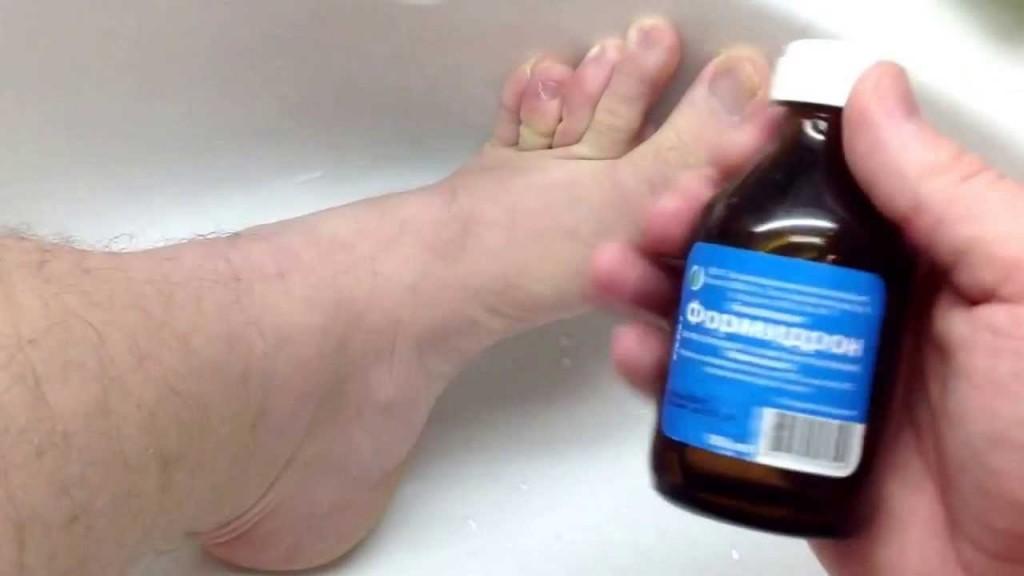 Как можно вылечить ноги от запаха и грибка ног