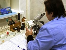 Лейкоциты в секрете предстательной железы