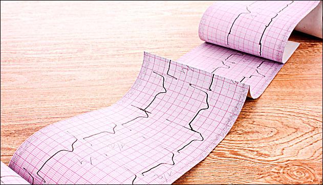 ЭКГ исследование: подготовка к процедуре, показания и противопоказания