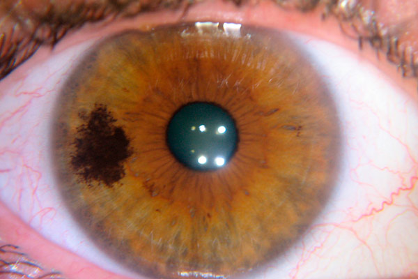 Опухоли хориоидеи глаза: симптомы, лечение, лазерная коагуляция