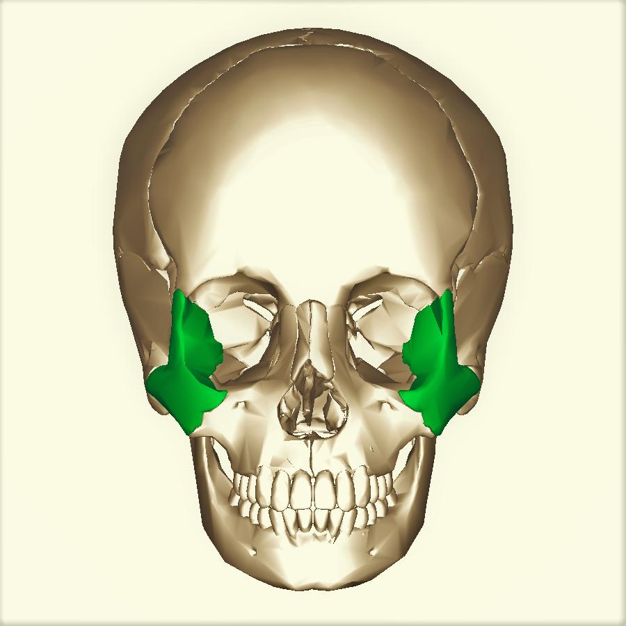 Перелом Орбитальной Кости - Последствия, Со Смещением, Лечение