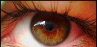 ретинит