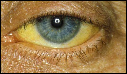 Желтые пятна в глазах
