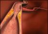 Окклюзия центральной вены сетчатки